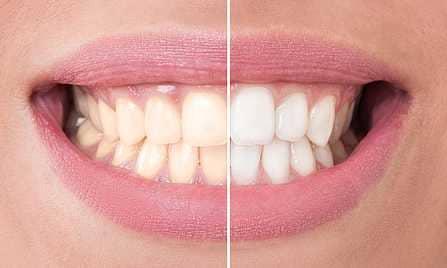 Weiße Zähne durch Bleaching auf www.weissezaehnebleaching.de