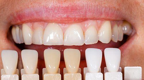 Unterschiedliche Zahnfarben