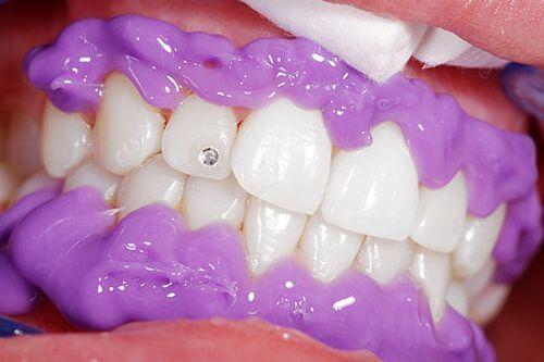 Gingiva Protector Schutzgel beim Zahnbleaching - weissezaehnebleaching.de