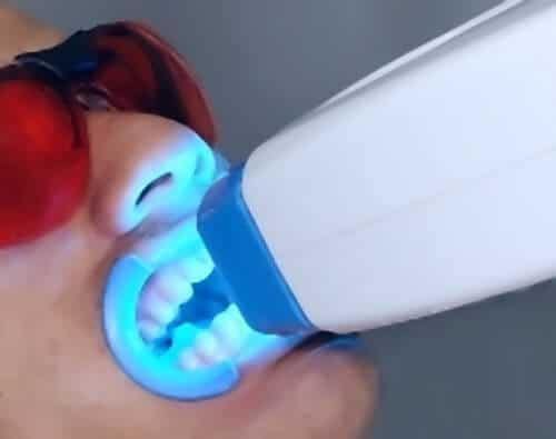 Professionelles Zahnbleaching mit LED-Licht - weissezaehnebleaching.de
