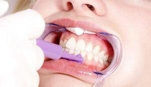 Vorbereitung Zahnbleaching