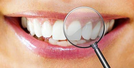 Zahnkontrolle vor dem Bleaching