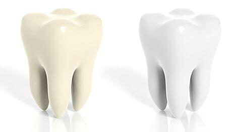weiße oder gelbe Zähne auf www.weissezaehnebleaching.de