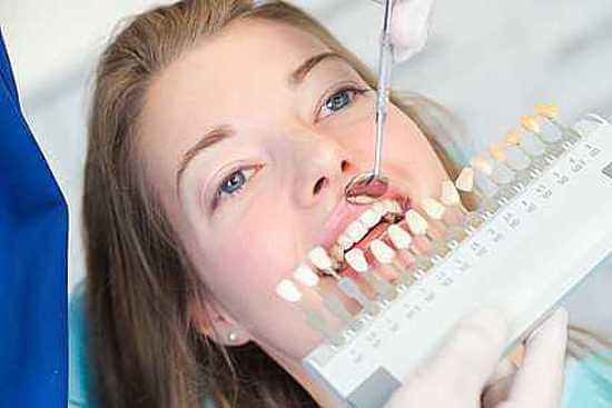 Vergleich Zahnfarbskala vor dem Zähne aufhellen - weissezaehnebleaching.de