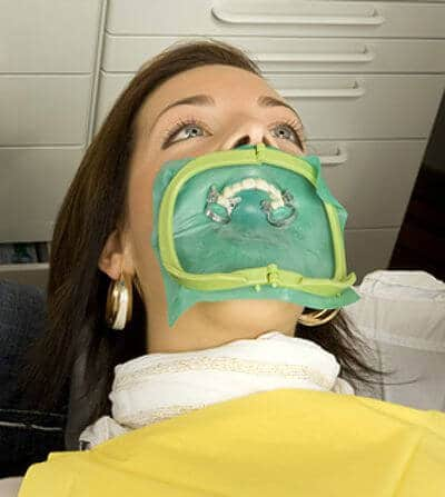 Vorbereitung Zahnbleaching mit Kofferdam - weissezaehnebleaching.de