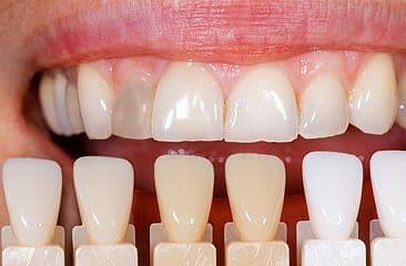 Farbvergleich Zahnfarben Bleaching - weissezaehnebleaching.de