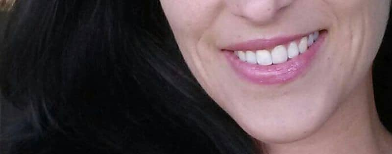 Ästhetische Zahnheilkunde: So verschönerst du dein Lächeln